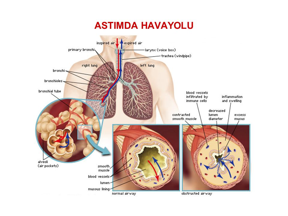 AKUT ASTIM ATAĞI Nefes darlığında ilerleyici artış, Öksürük, Hışıltı veya Göğüste sıkışma hissi, yada Bu semptomların kombinasyonlarını içeren akut episodlar…