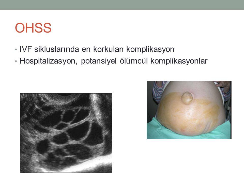 OHSS IVF sikluslarında en korkulan komplikasyon Hospitalizasyon, potansiyel ölümcül komplikasyonlar