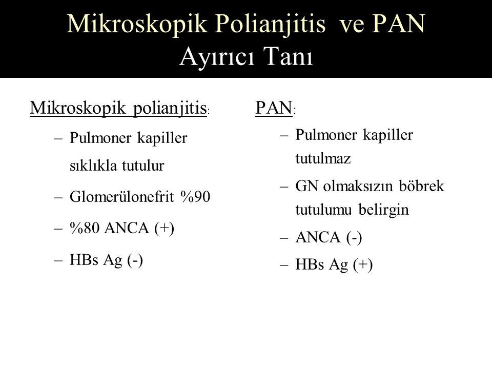 Mikroskopik Polianjitis ve PAN Ayırıcı Tanı Mikroskopik polianjitis : –Pulmoner kapiller sıklıkla tutulur –Glomerülonefrit %90 –%80 ANCA (+) –HBs Ag (-) PAN : –Pulmoner kapiller tutulmaz –GN olmaksızın böbrek tutulumu belirgin –ANCA (-) –HBs Ag (+)
