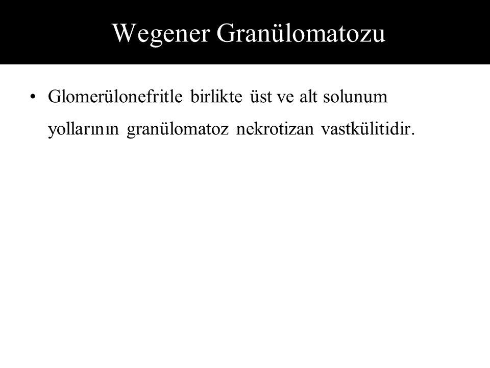 Wegener Granülomatozu Glomerülonefritle birlikte üst ve alt solunum yollarının granülomatoz nekrotizan vastkülitidir.