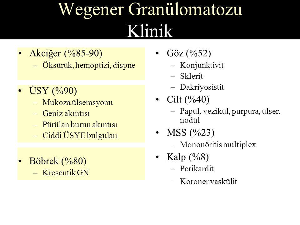 Akciğer (%85-90) –Öksürük, hemoptizi, dispne ÜSY (%90) –Mukoza ülserasyonu –Geniz akıntısı –Pürülan burun akıntısı –Ciddi ÜSYE bulguları Böbrek (%80) –Kresentik GN Wegener Granülomatozu Klinik Göz (%52) –Konjunktivit –Sklerit –Dakriyosistit Cilt (%40) –Papül, vezikül, purpura, ülser, nodül MSS (%23) –Mononöritis multiplex Kalp (%8) –Perikardit –Koroner vaskülit
