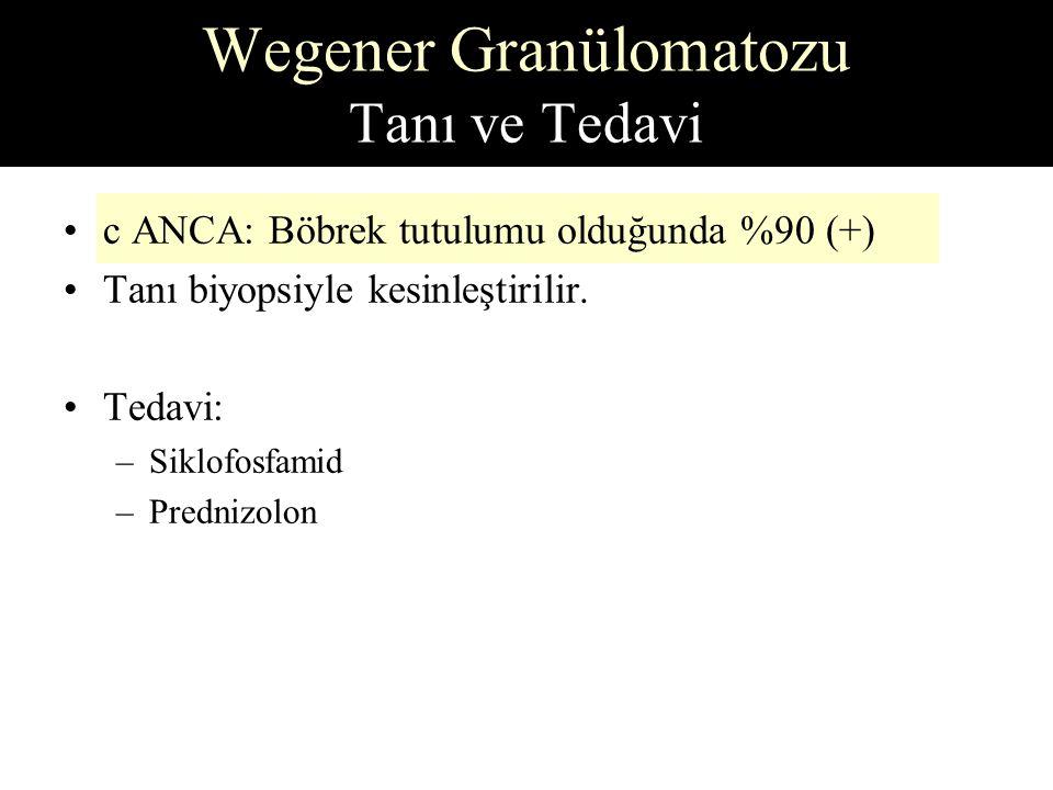 Wegener Granülomatozu Tanı ve Tedavi c ANCA: Böbrek tutulumu olduğunda %90 (+) Tanı biyopsiyle kesinleştirilir.