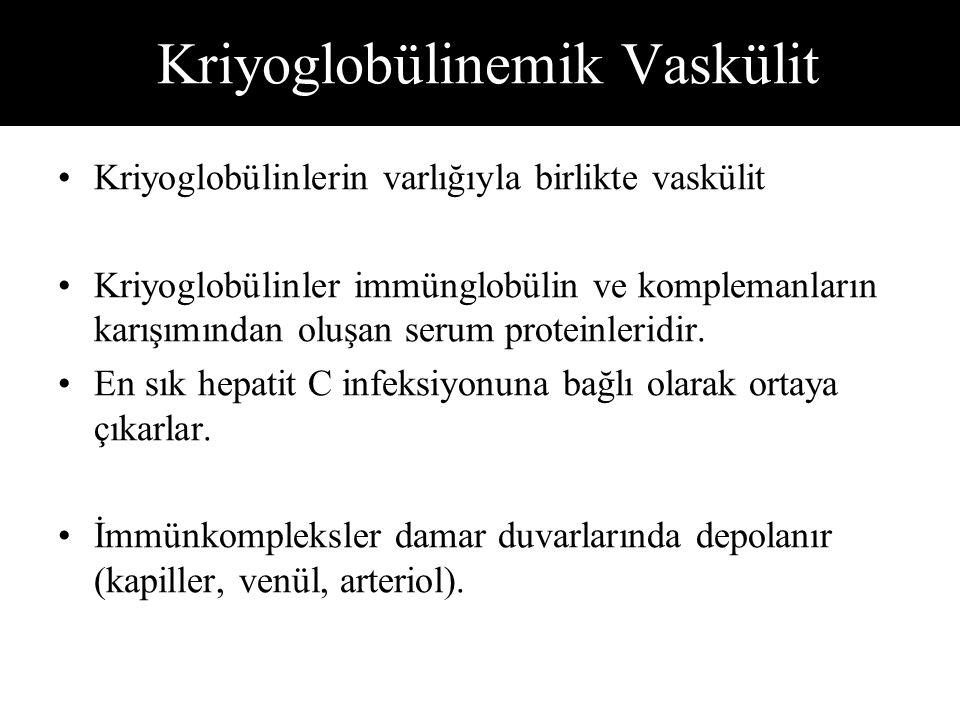 Kriyoglobülinemik Vaskülit Kriyoglobülinlerin varlığıyla birlikte vaskülit Kriyoglobülinler immünglobülin ve komplemanların karışımından oluşan serum proteinleridir.
