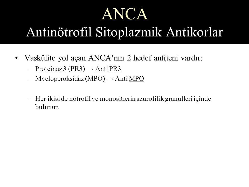 ANCA Antinötrofil Sitoplazmik Antikorlar Vaskülite yol açan ANCA'nın 2 hedef antijeni vardır: –Proteinaz 3 (PR3) → Anti PR3 –Myeloperoksidaz (MPO) → Anti MPO –Her ikisi de nötrofil ve monositlerin azurofilik granülleri içinde bulunur.