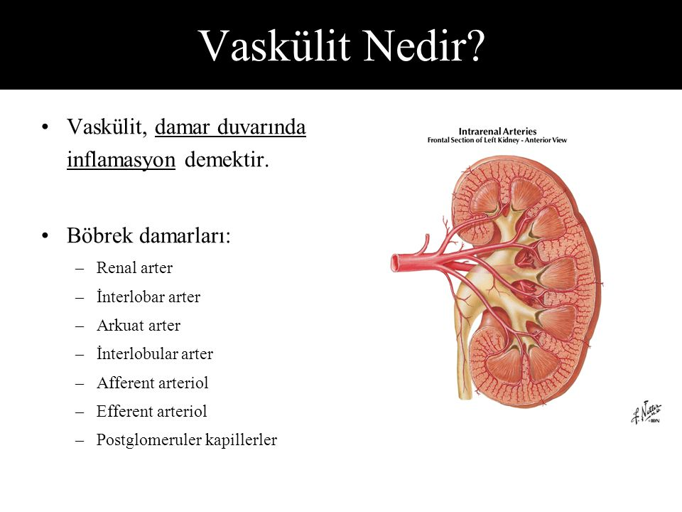 Vaskülit, damar duvarında inflamasyon demektir.