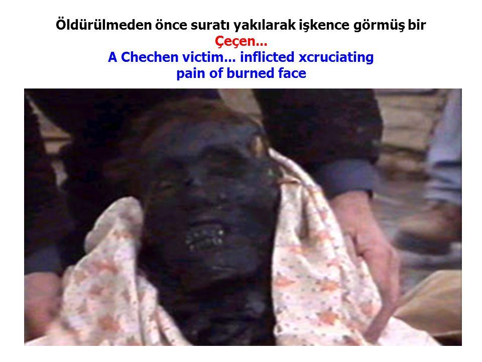 Öldürülmeden önce suratı yakılarak işkence görmüş bir Çeçen... A Chechen victim... inflicted xcruciating pain of burned face