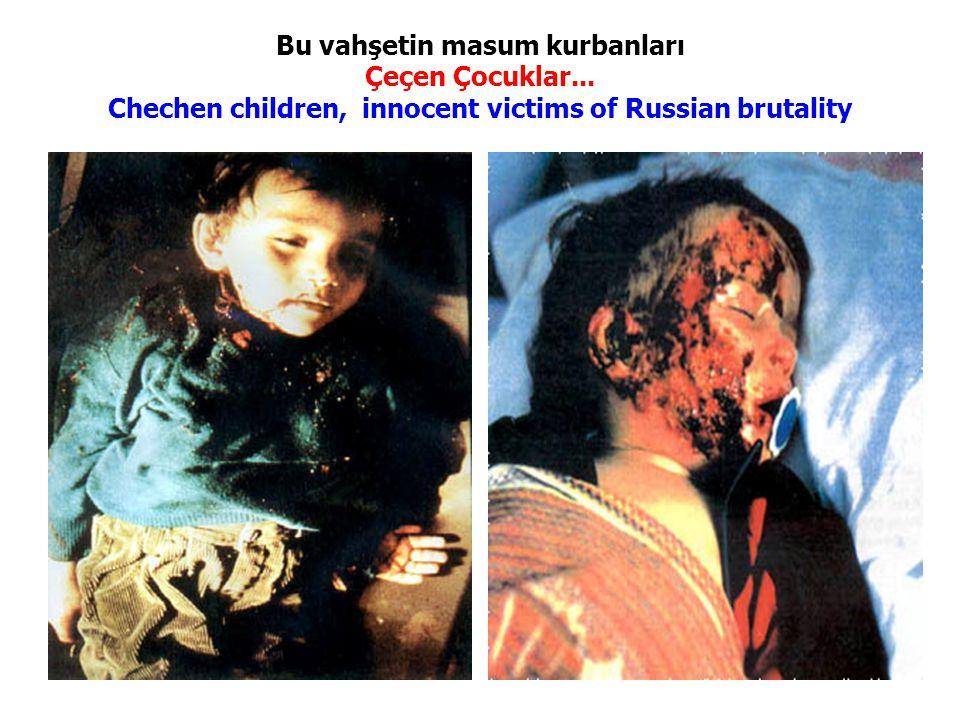 Bu vahşetin masum kurbanları Çeçen Çocuklar... Chechen children, innocent victims of Russian brutality