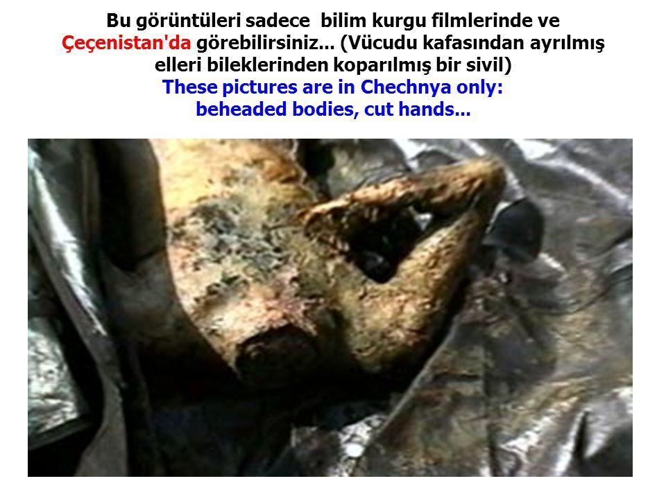 Bu görüntüleri sadece bilim kurgu filmlerinde ve Çeçenistan'da görebilirsiniz... (Vücudu kafasından ayrılmış elleri bileklerinden koparılmış bir sivil