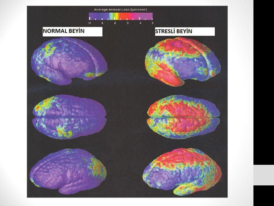 2012 yılında Yale Üniversitesi tarafından yapılan bir araştırmaya göre kronik stres beyin hacminin azalmasına yol açıyor.
