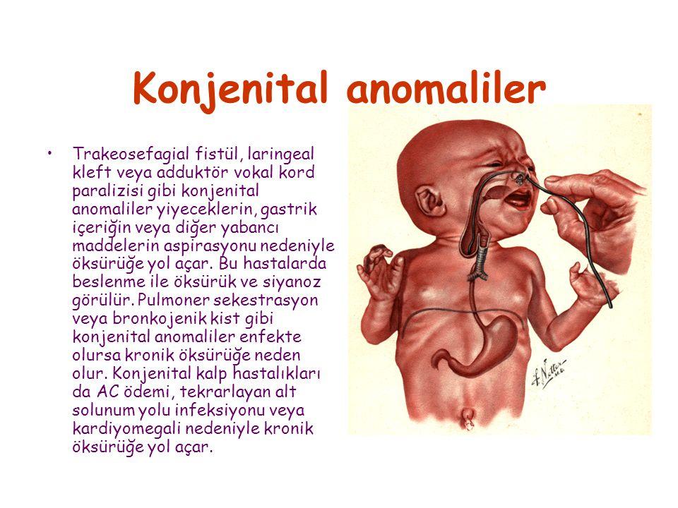 Konjenital anomaliler Trakeosefagial fistül, laringeal kleft veya adduktör vokal kord paralizisi gibi konjenital anomaliler yiyeceklerin, gastrik içeriğin veya diğer yabancı maddelerin aspirasyonu nedeniyle öksürüğe yol açar.