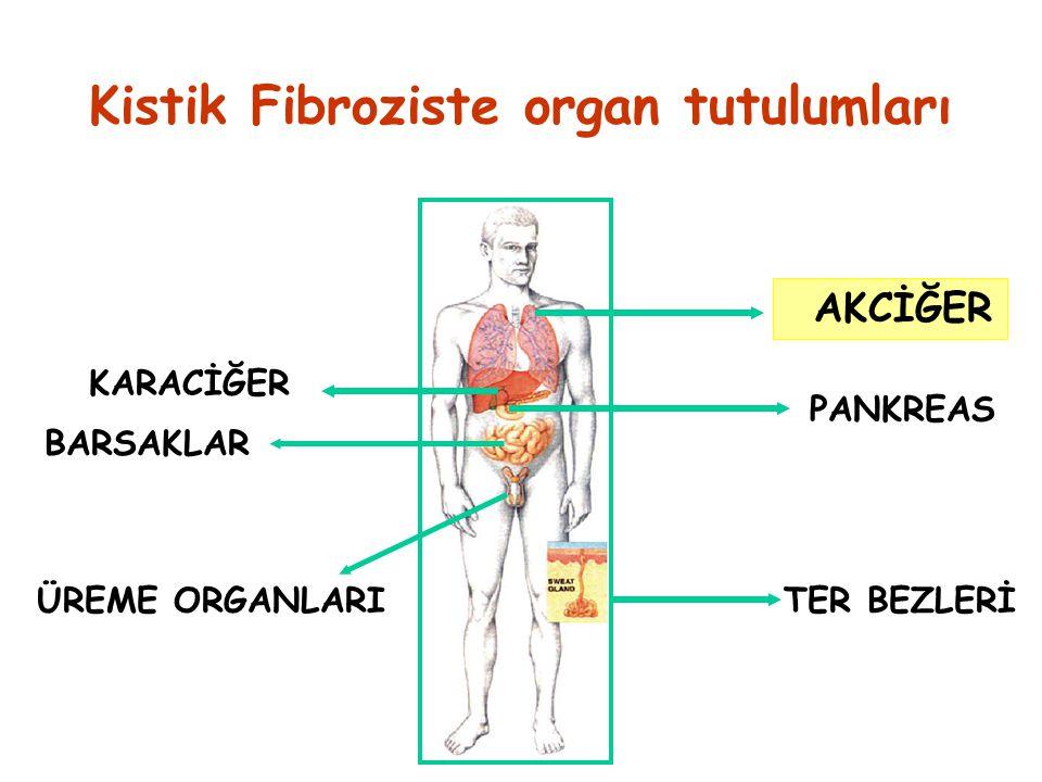 AKCİĞER PANKREAS ÜREME ORGANLARI KARACİĞER TER BEZLERİ Kistik Fibroziste organ tutulumları BARSAKLAR