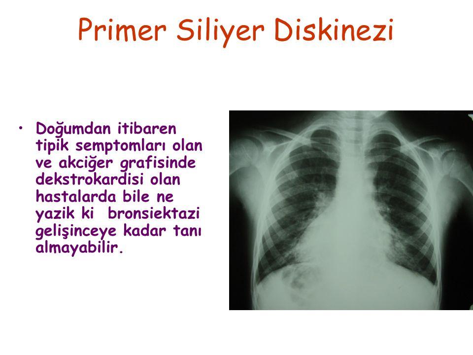Primer Siliyer Diskinezi Doğumdan itibaren tipik semptomları olan ve akciğer grafisinde dekstrokardisi olan hastalarda bile ne yazik ki bronsiektazi gelişinceye kadar tanı almayabilir.
