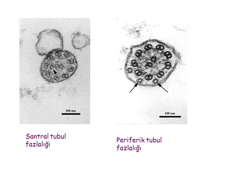 Santral tubul fazlalığı Periferik tubul fazlalığı