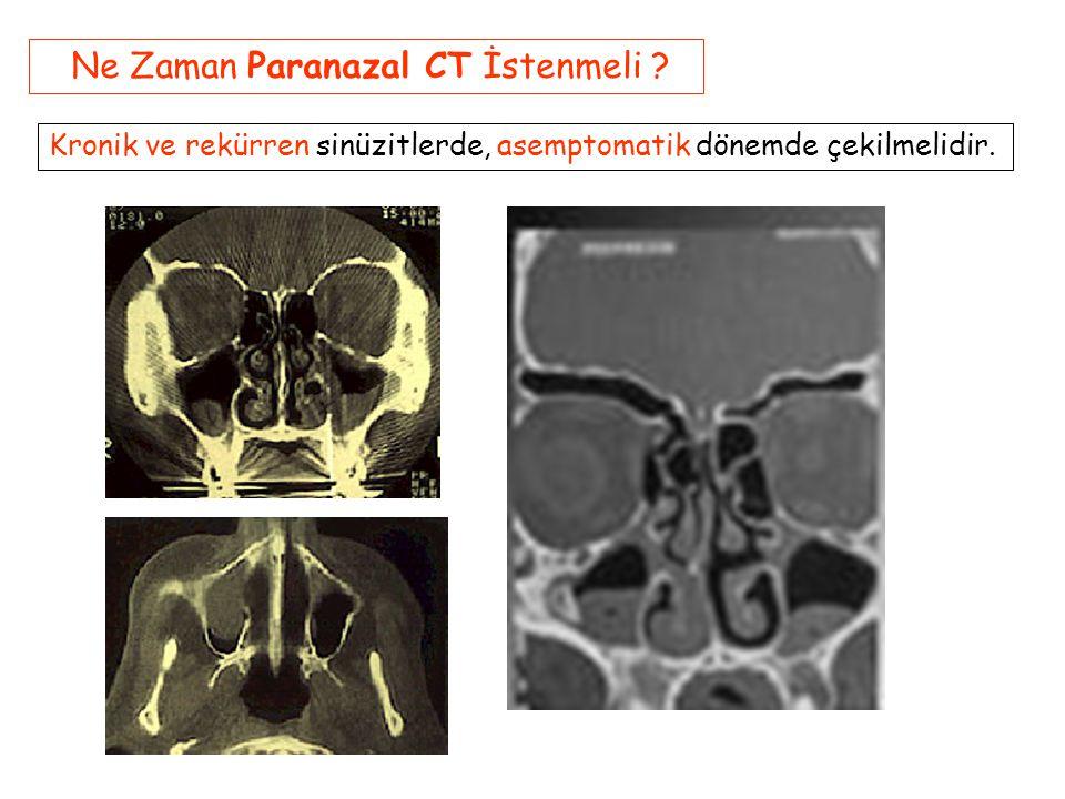 Ne Zaman Paranazal CT İstenmeli .