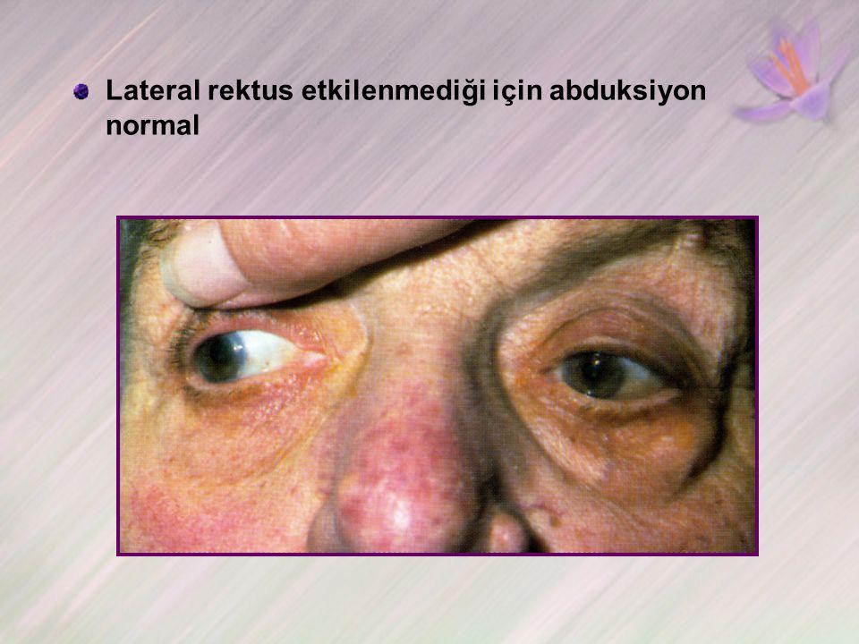 Lateral rektus etkilenmediği için abduksiyon normal