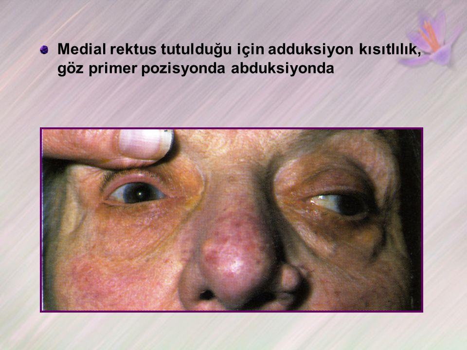 Medial rektus tutulduğu için adduksiyon kısıtlılık, göz primer pozisyonda abduksiyonda