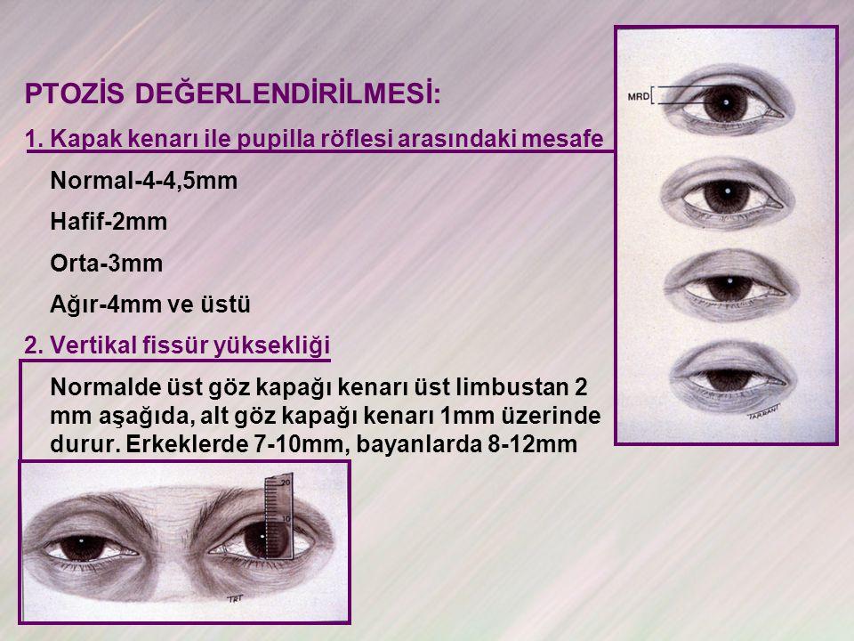 PTOZİS DEĞERLENDİRİLMESİ: 1.Kapak kenarı ile pupilla röflesi arasındaki mesafe Normal-4-4,5mm Hafif-2mm Orta-3mm Ağır-4mm ve üstü 2.Vertikal fissür yüksekliği Normalde üst göz kapağı kenarı üst limbustan 2 mm aşağıda, alt göz kapağı kenarı 1mm üzerinde durur.