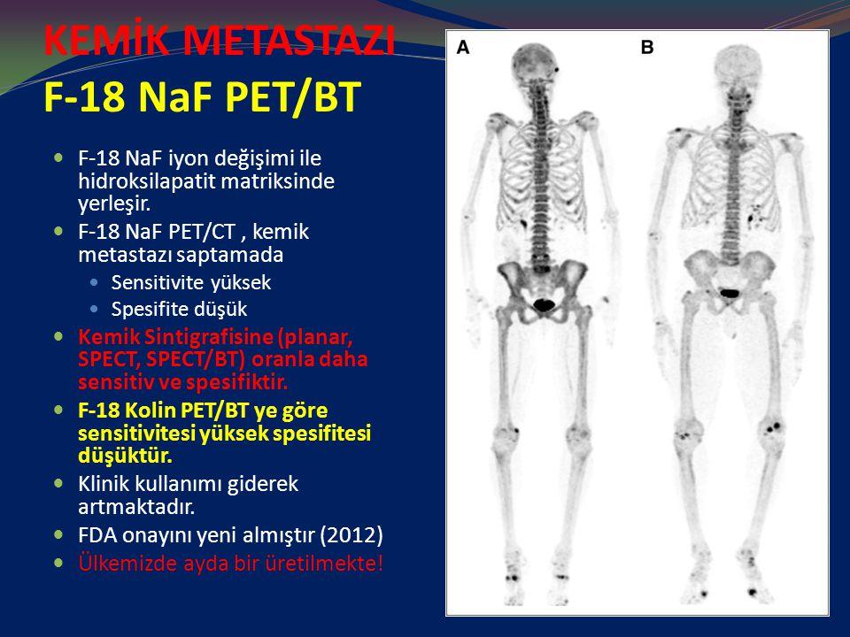 KEMİK METASTAZI F-18 NaF PET/BT F-18 NaF iyon değişimi ile hidroksilapatit matriksinde yerleşir. F-18 NaF PET/CT, kemik metastazı saptamada Sensitivit