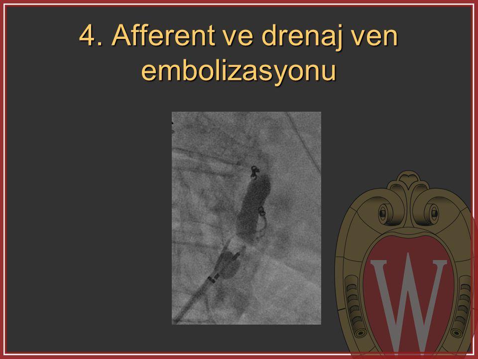 4. Afferent ve drenaj ven embolizasyonu