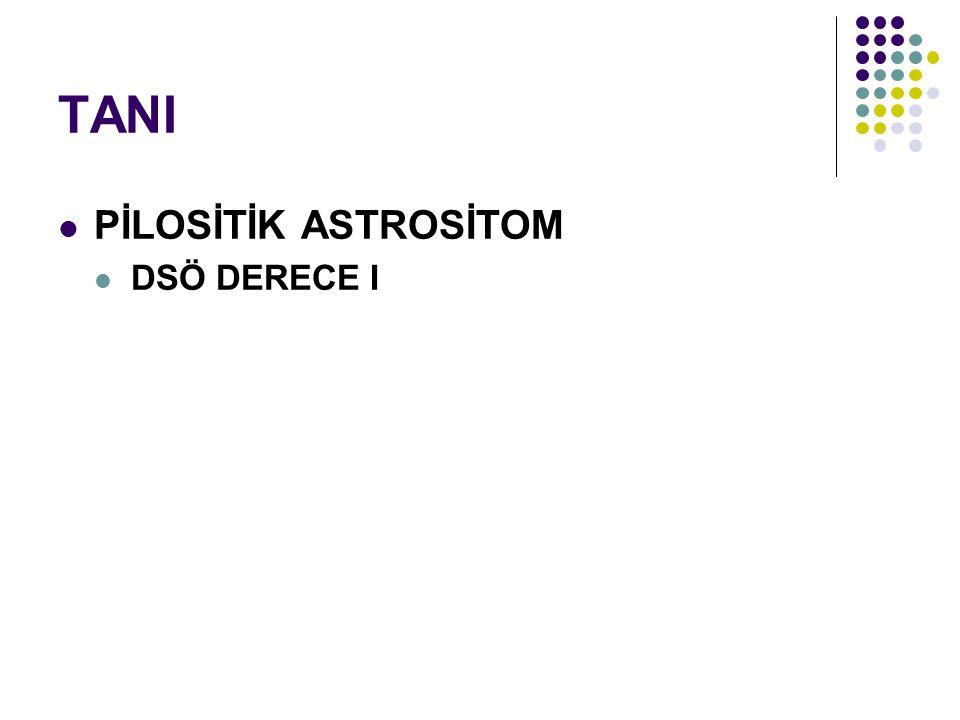 TANI PİLOSİTİK ASTROSİTOM DSÖ DERECE I