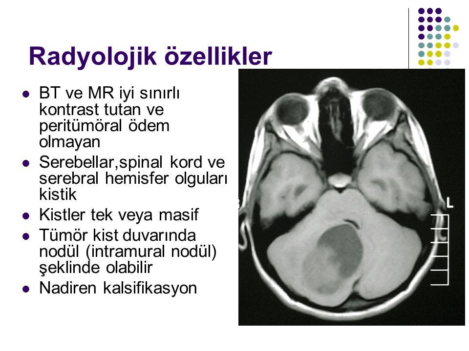 Radyolojik özellikler BT ve MR iyi sınırlı kontrast tutan ve peritümöral ödem olmayan Serebellar,spinal kord ve serebral hemisfer olguları kistik Kist