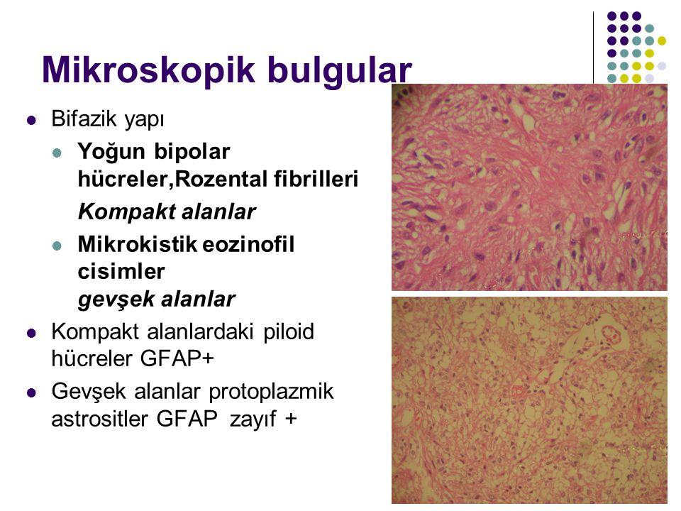 Mikroskopik bulgular Bifazik yapı Yoğun bipolar hücreler,Rozental fibrilleri Kompakt alanlar Mikrokistik eozinofil cisimler gevşek alanlar Kompakt ala