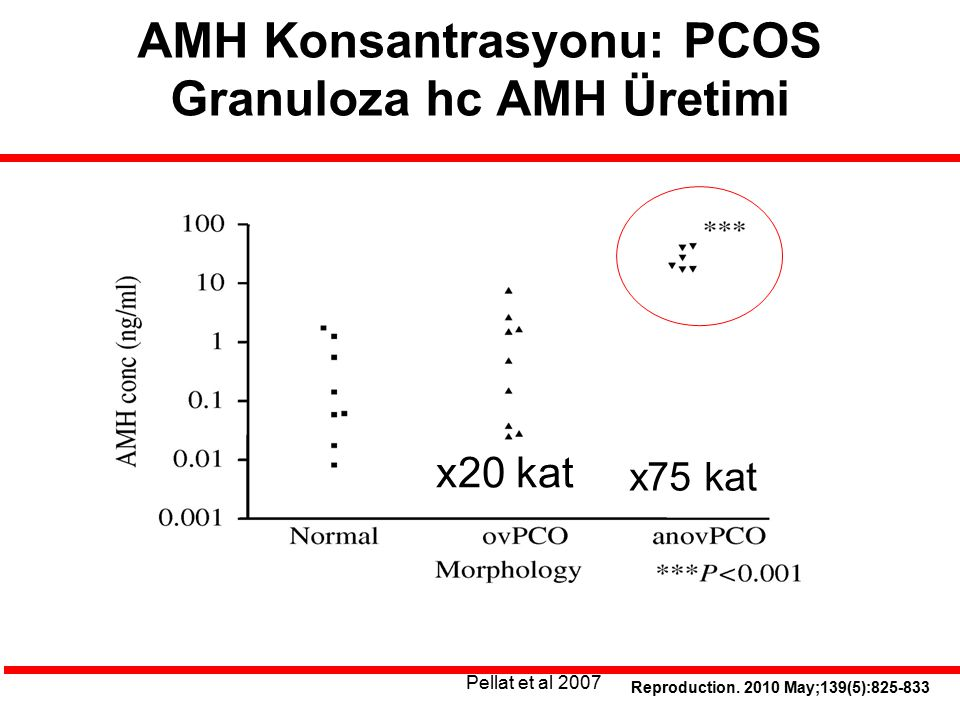 Reproduction. 2010 May;139(5):825-833 AMH Konsantrasyonu: PCOS Granuloza hc AMH Üretimi x75 kat x20 kat Pellat et al 2007