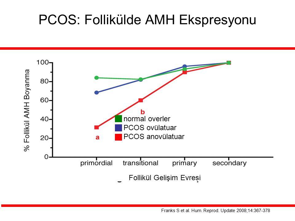 PCOS: Follikülde AMH Ekspresyonu Franks S et al. Hum. Reprod. Update 2008;14:367-378 normal overler PCOS ovülatuar PCOS anovülatuar Follikül Gelişim E