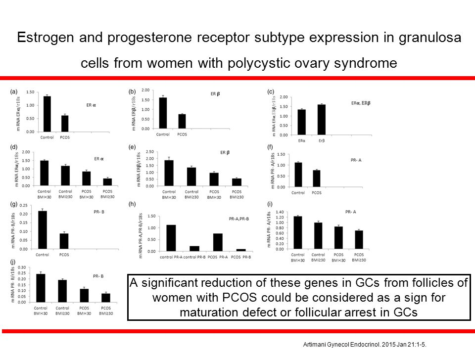 A significant reduction of these genes in GCs from follicles of women with PCOS could be considered as a sign for maturation defect or follicular arre