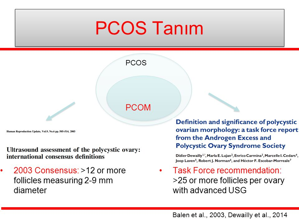 PCOS Tanım PCOM 2003 Consensus: >12 or more follicles measuring 2-9 mm diameter Task Force recommendation: >25 or more follicles per ovary with advanc