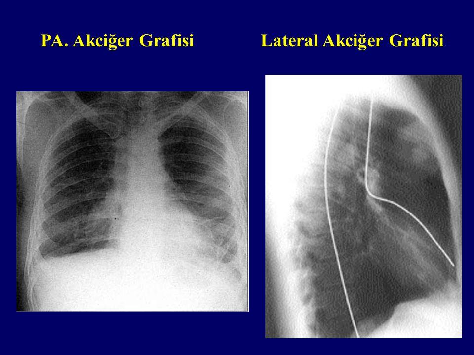 Lateral Akciğer GrafisiPA. Akciğer Grafisi