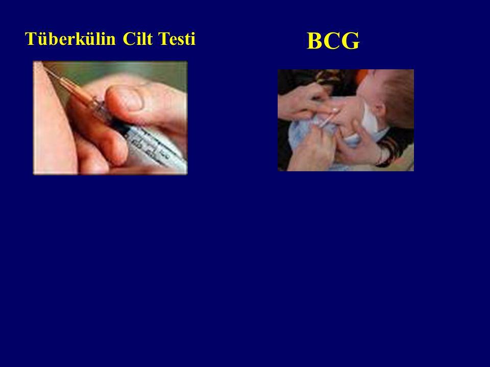 Tüberkülin Cilt Testi BCG