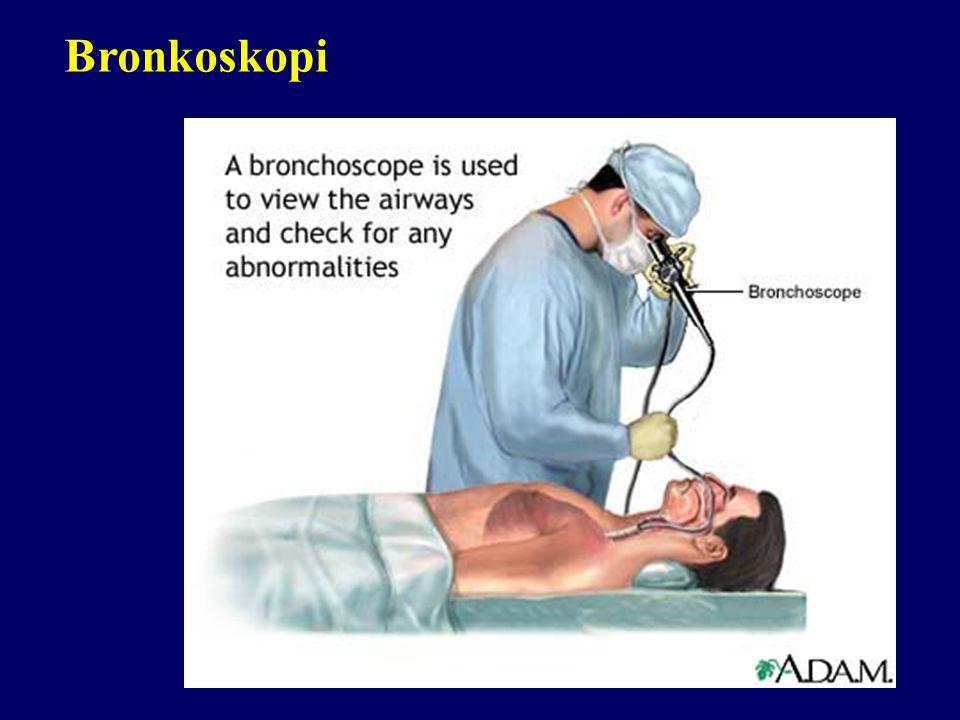 Bronş provokasyon testi Spesifik Nonspesifik