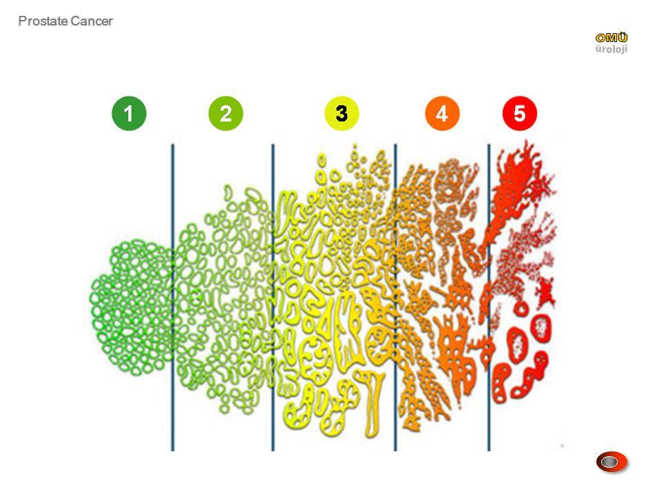 Prostate Cancer N Eng J Med 2012;367:203 Prostat kanserine bağlı ölümde RP ve gözlem seçeneklerini öne çıkaran parametreler.