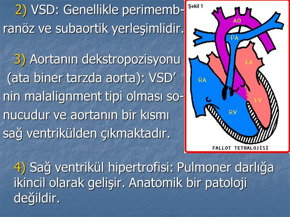 2) VSD: Genellikle perimemb- 2) VSD: Genellikle perimemb- ranöz ve subaortik yerleşimlidir. 3) Aortanın dekstropozisyonu (ata biner tarzda aorta): VSD