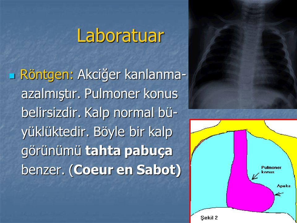 Laboratuar Röntgen: Akciğer kanlanma- Röntgen: Akciğer kanlanma- azalmıştır. Pulmoner konus azalmıştır. Pulmoner konus belirsizdir. Kalp normal bü- be