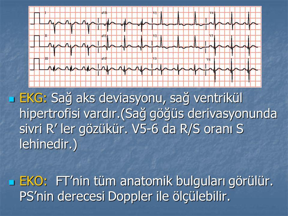 EKG: Sağ aks deviasyonu, sağ ventrikül hipertrofisi vardır.(Sağ göğüs derivasyonunda sivri R' ler gözükür. V5-6 da R/S oranı S lehinedir.) EKG: Sağ ak