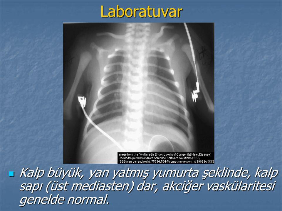 Laboratuvar Kalp büyük, yan yatmış yumurta şeklinde, kalp sapı (üst mediasten) dar, akciğer vaskülaritesi genelde normal. Kalp büyük, yan yatmış yumur
