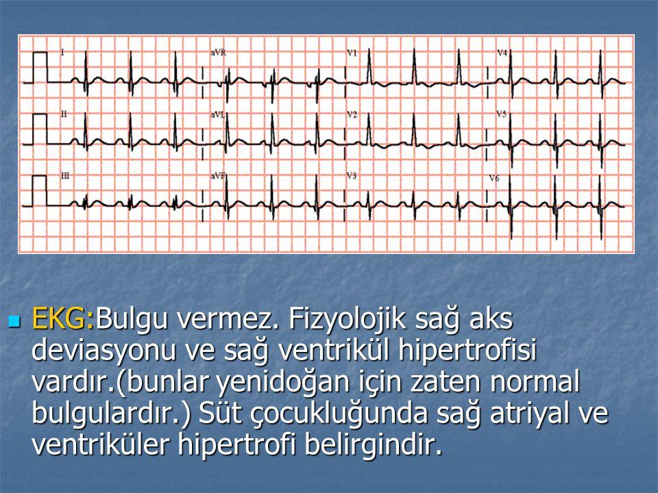 EKG:Bulgu vermez. Fizyolojik sağ aks deviasyonu ve sağ ventrikül hipertrofisi vardır.(bunlar yenidoğan için zaten normal bulgulardır.) Süt çocukluğund