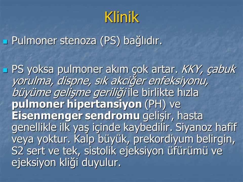 Klinik Pulmoner stenoza (PS) bağlıdır. Pulmoner stenoza (PS) bağlıdır. PS yoksa pulmoner akım çok artar. KKY, çabuk yorulma, dispne, sık akciğer enfek