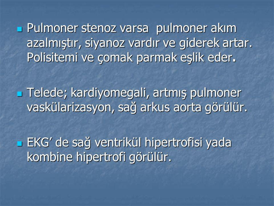 Pulmoner stenoz varsa pulmoner akım azalmıştır, siyanoz vardır ve giderek artar. Polisitemi ve çomak parmak eşlik eder. Pulmoner stenoz varsa pulmoner