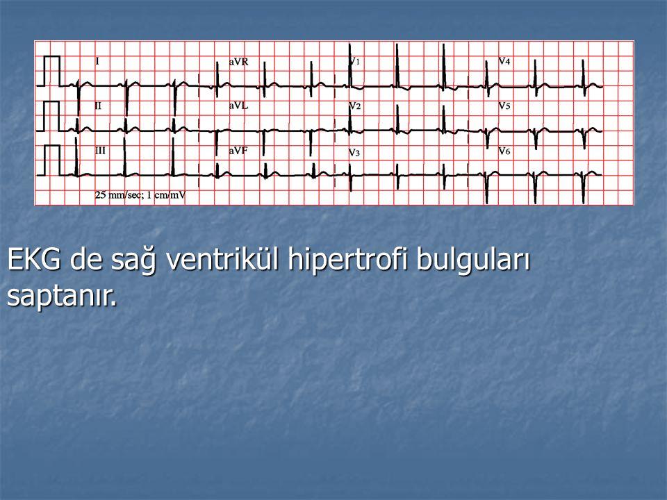 EKG de sağ ventrikül hipertrofi bulguları saptanır.