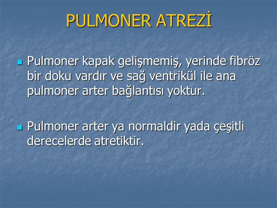 PULMONER ATREZİ Pulmoner kapak gelişmemiş, yerinde fibröz bir doku vardır ve sağ ventrikül ile ana pulmoner arter bağlantısı yoktur. Pulmoner kapak ge