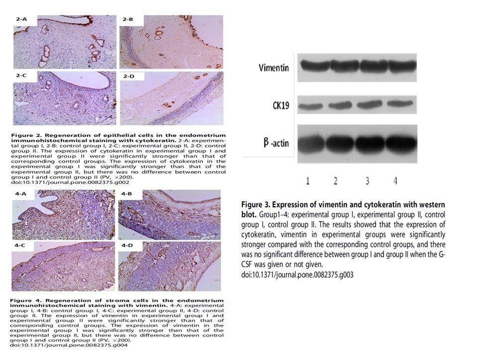 G-CSF Histolojik olarak endometrial kalınlıkta artış, endometrial glandlarda ve kapillerde sayısal artma Vimetin ve cytokeratin ekspresyonlarında artış ve yeni kapiller sayında artma Epitel hücrelerinin, stromal hücrelerin ve endotelyal hücrelerin rejenerasyonunda artış Erişkin stem cell proliferasyonu ve differansiasyonu ?