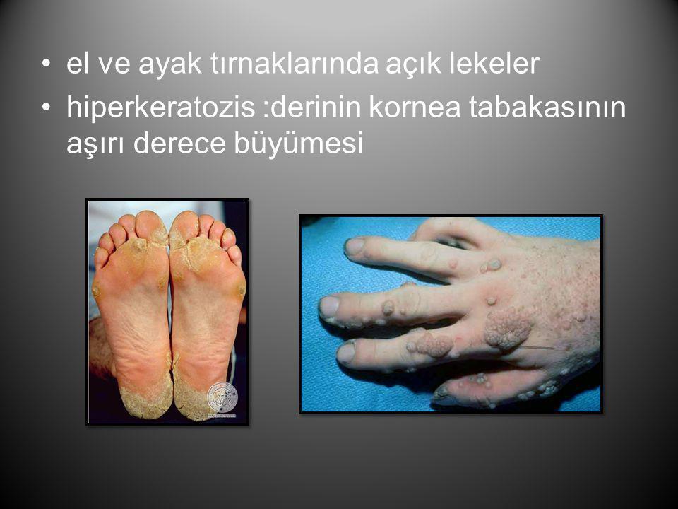 •el ve ayak tırnaklarında açık lekeler •hiperkeratozis :derinin kornea tabakasının aşırı derece büyümesi