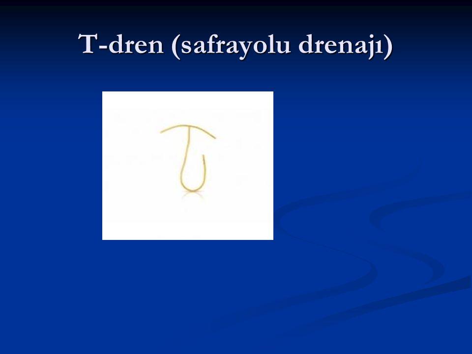T-dren (safrayolu drenajı)