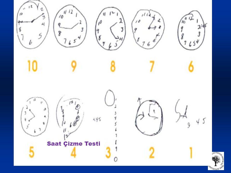 Saat Çizme Testi