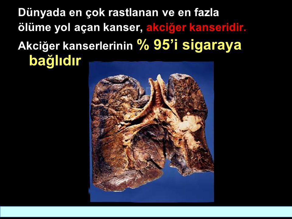 Dünyada en çok rastlanan ve en fazla ölüme yol açan kanser, akciğer kanseridir.