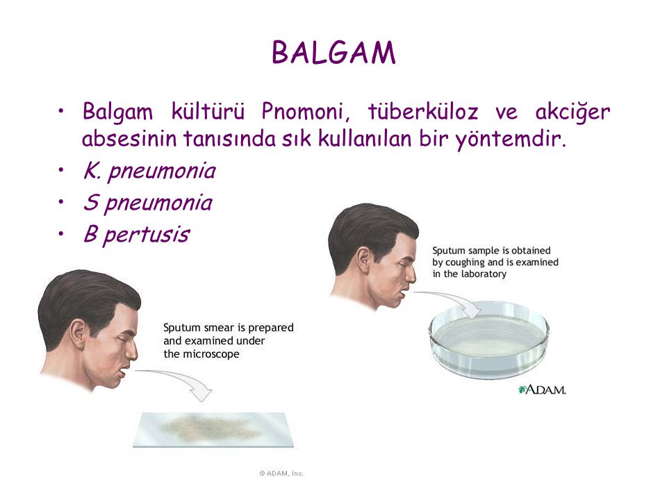 BALGAM •Balgam kültürü Pnomoni, tüberküloz ve akciğer absesinin tanısında sık kullanılan bir yöntemdir. •K. pneumonia •S pneumonia •B pertusis