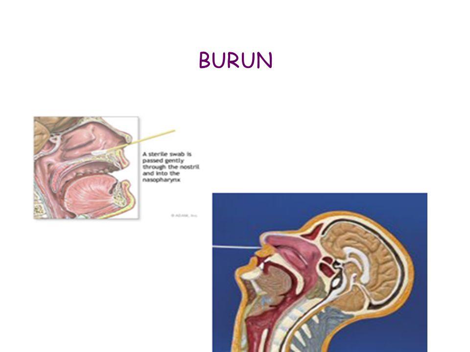 BURUN
